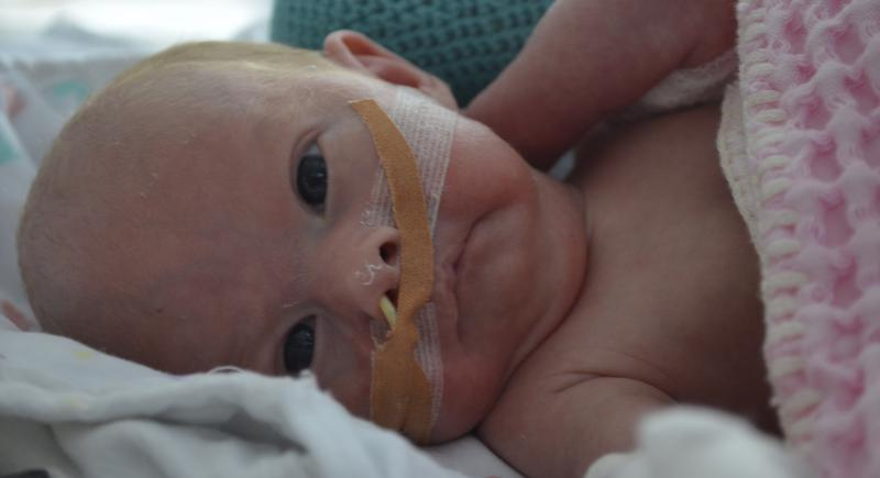 baby met sonde in neus