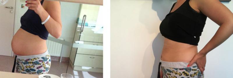 zwangere vrouw voor en na